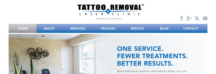 Tattoo-Removal-Website